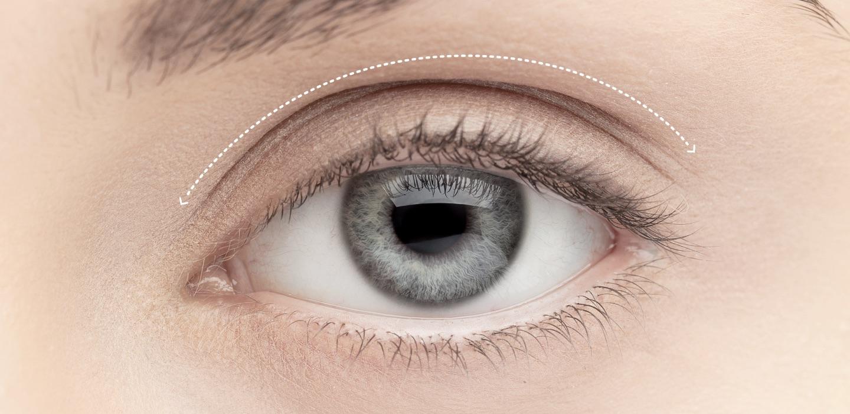 viso-blefaroplastica-superiore